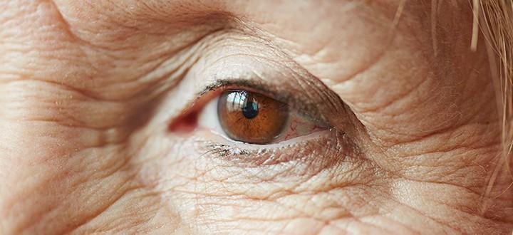 Leggyakoribb  időskori szembetegségek